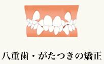 八重歯・がたつきの矯正