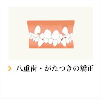 叢生・八重歯